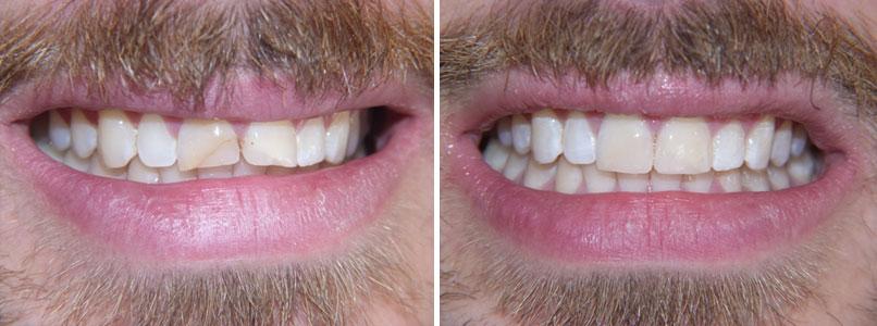 Otturazioni estetiche e ricostruzione dei denti